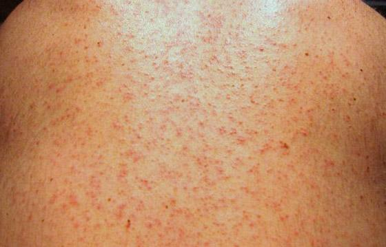 麻疹マウパプラー性発疹。