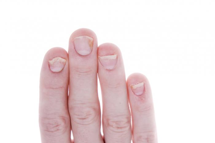 [psoriasis des ongles]