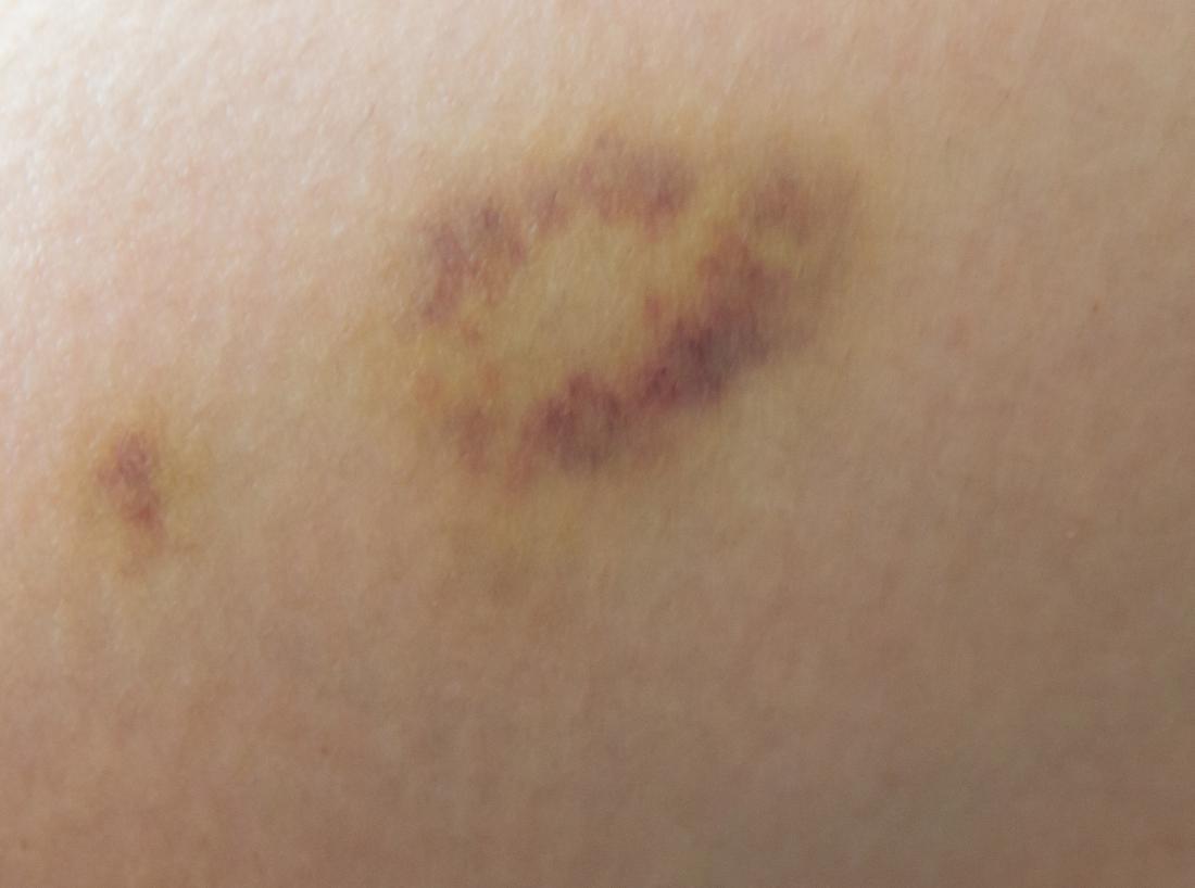 vết bầm trên da
