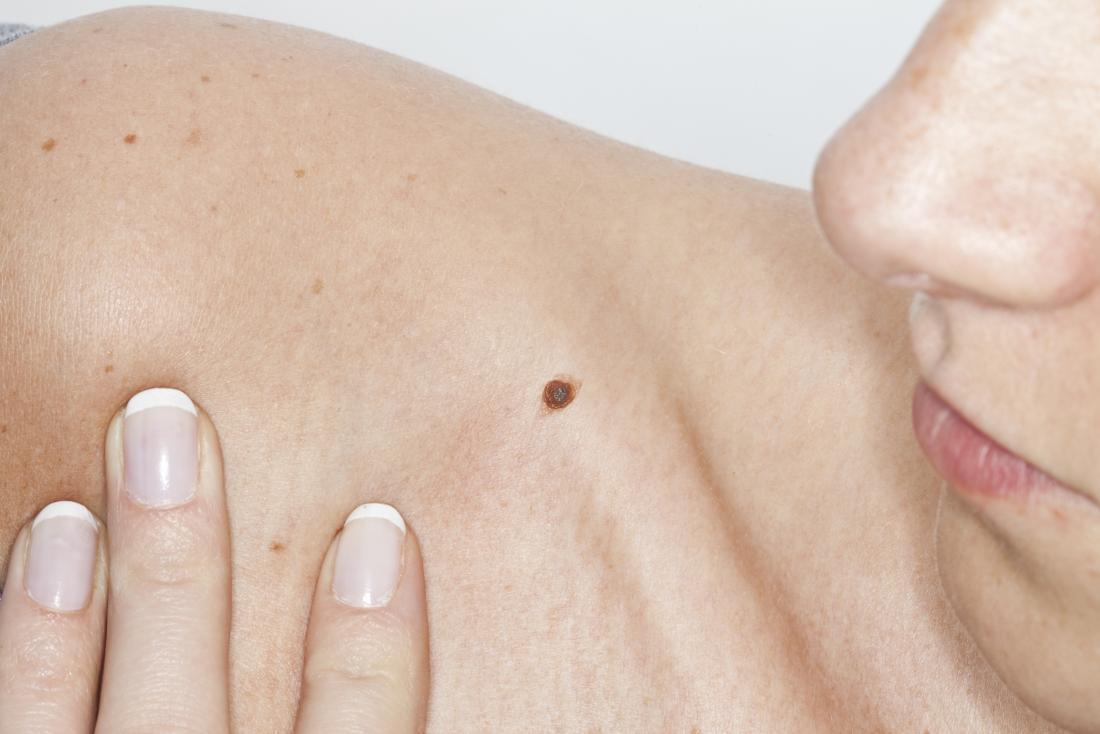Donna che guarda prurito talpa sulla sua spalla nuda.