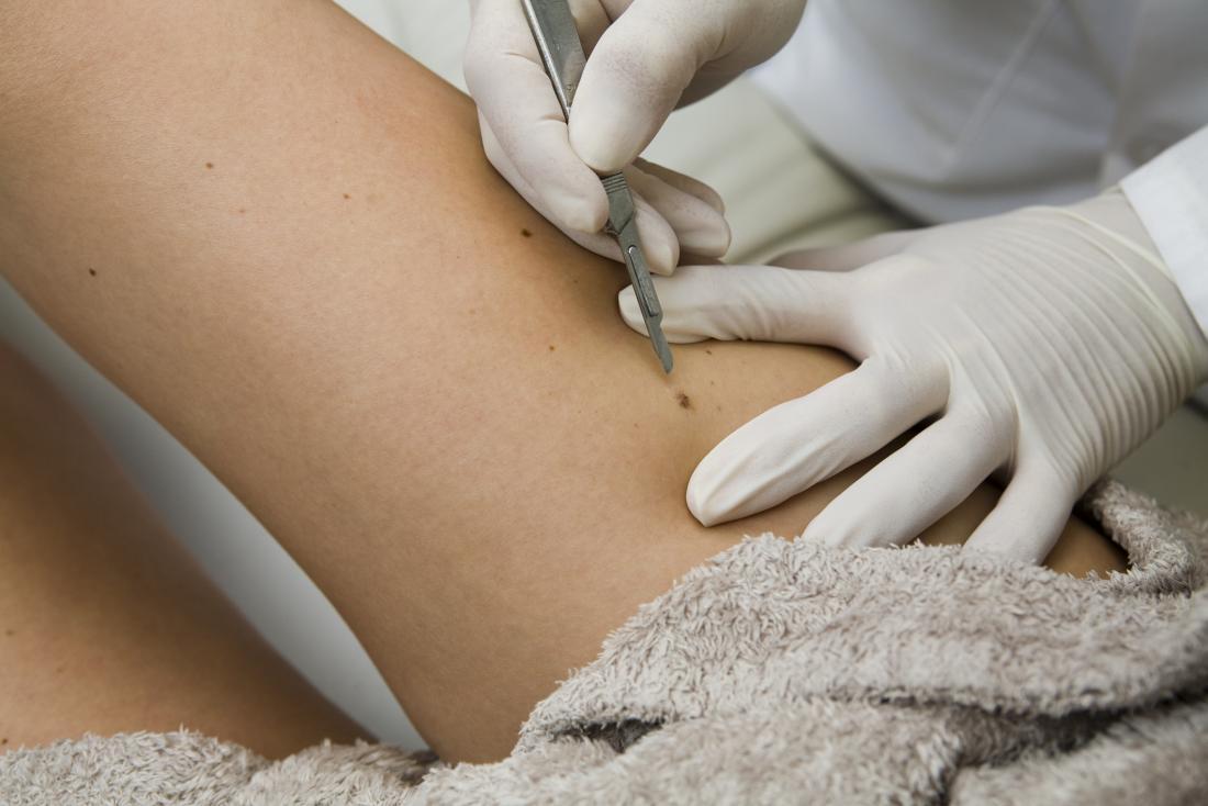 Talpa viene rimossa chirurgicamente attraverso l'asportazione o la rasatura.