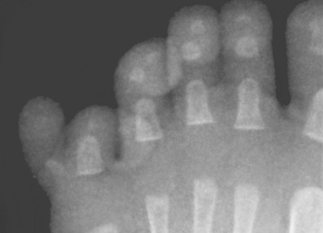 Polidattilia ulnare o postassiale o duplicazione di piccole dita. Image credit: Archivio storico Radke / Otis di