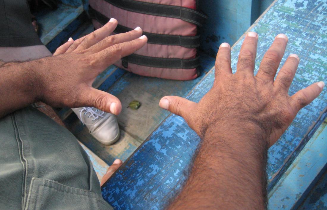 Polidattilia centrale che causa la presenza di sei dita. Immagine di credito: Wilhelmy, (2014, 2 marzo).