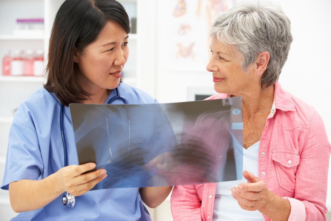看護師と肺のX線を見ている女性。