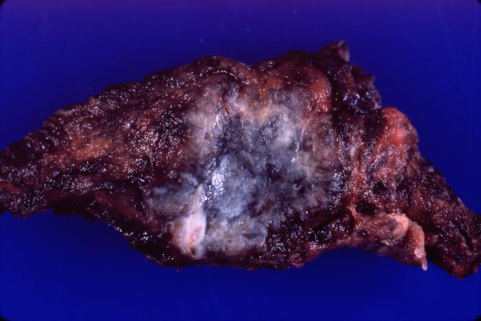 [Squamous cell carcinoma yale rosen wikicommons]