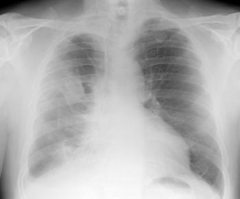 Radiographie pulmonaire numérique de plaques pleurales liées à l'amiante et mésothéliome