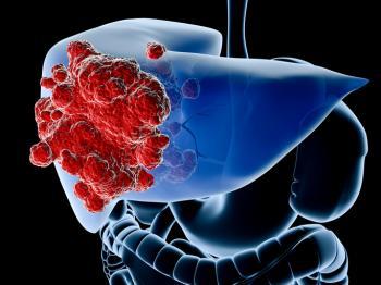 [диаграма, показваща черния дроб в синьо и червения рак]