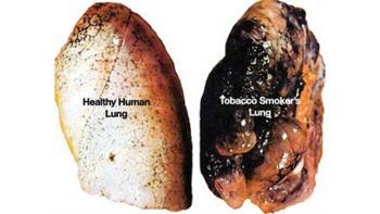 poumon sain par rapport aux poumons des fumeurs