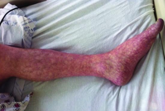 Livedo reticular geralmente afeta a pele das pernas.