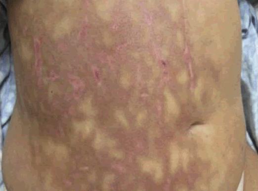 Pancreatite aguda que provoca pele mosqueada ou Livedo reticularis no abdome.