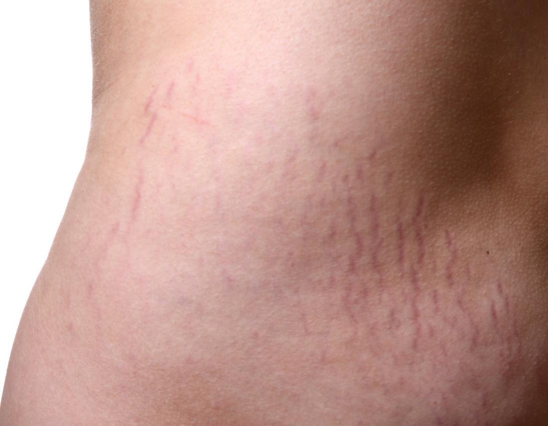 Smagliature sulla pelle che possono beneficiare di oli essenziali