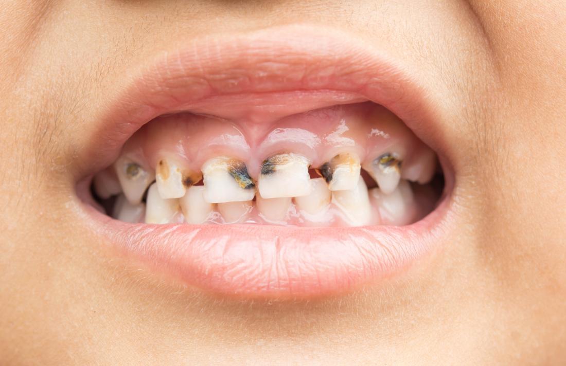 La carence en calcium peut causer la carie dentaire