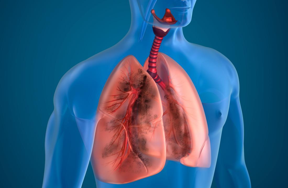 Modelo 3D de pulmões e vias aéreas.