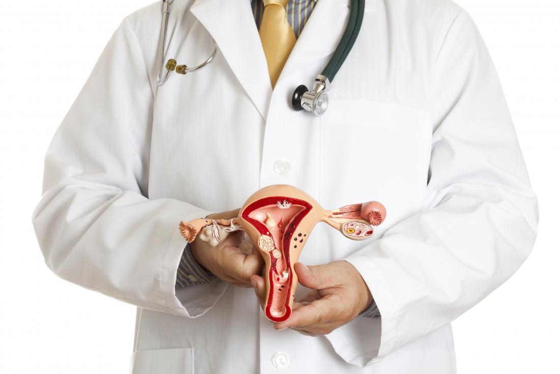 médecin tenant le modèle de l'utérus et des ovaires