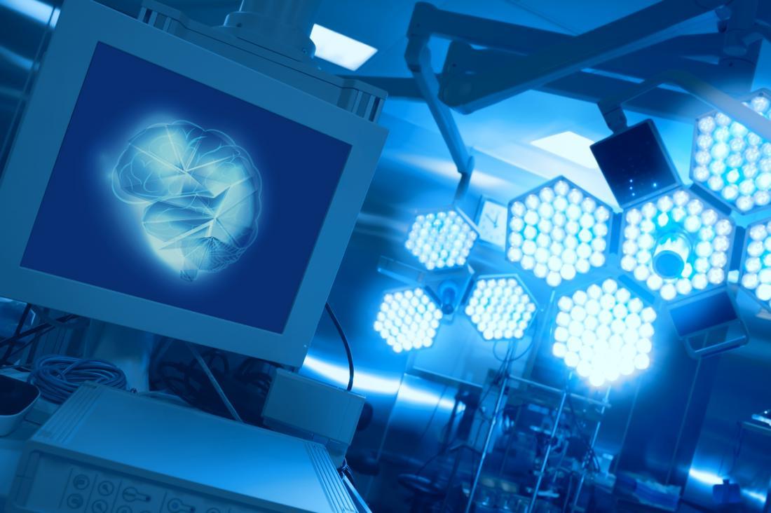 Cirurgia cerebral