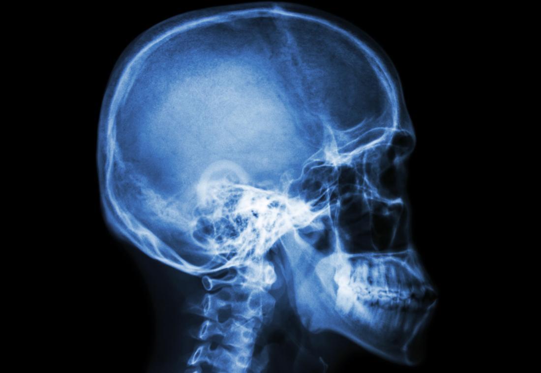raio x da cabeça e da coluna