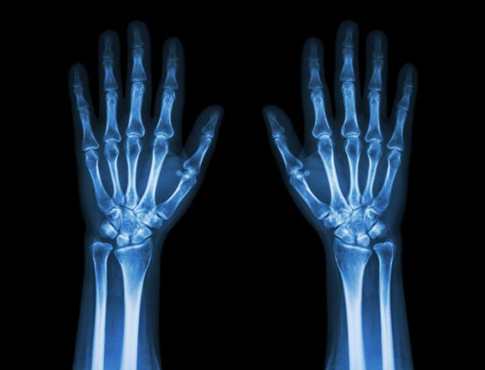 [Mãos e pulsos de raios X]