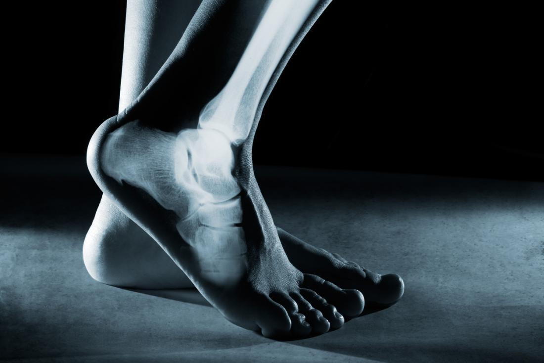 imagem do pé mostrando raio-x dos ossos