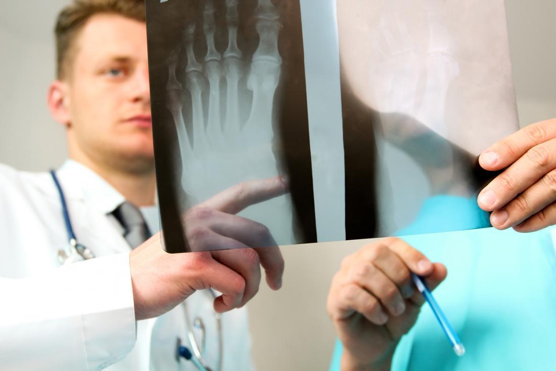 Médico, e, cirurgião, olhar, um, raio x, de, um, pé