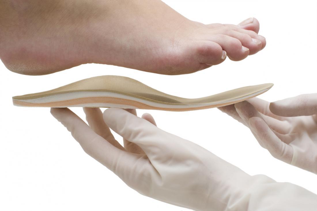 医者はインソールを足の形に適合させる