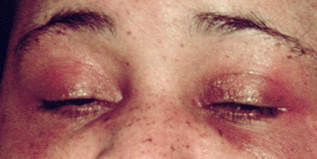 Heliotrop Ausschlag auf den Augenlidern. Bildnachweis Elizabeth M. Dugan, Adam M. Huber, Frederick W. Miller, Lisa G. Rider, 2010