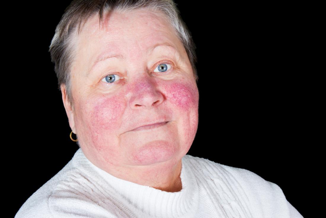 Eruzione cutanea malarica sul viso