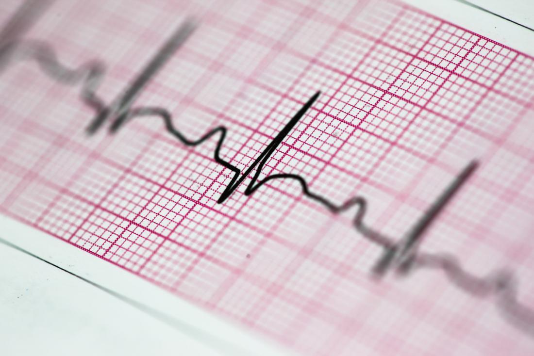 Électrocardiogramme (ECG), ou lecture du rythme cardiaque.