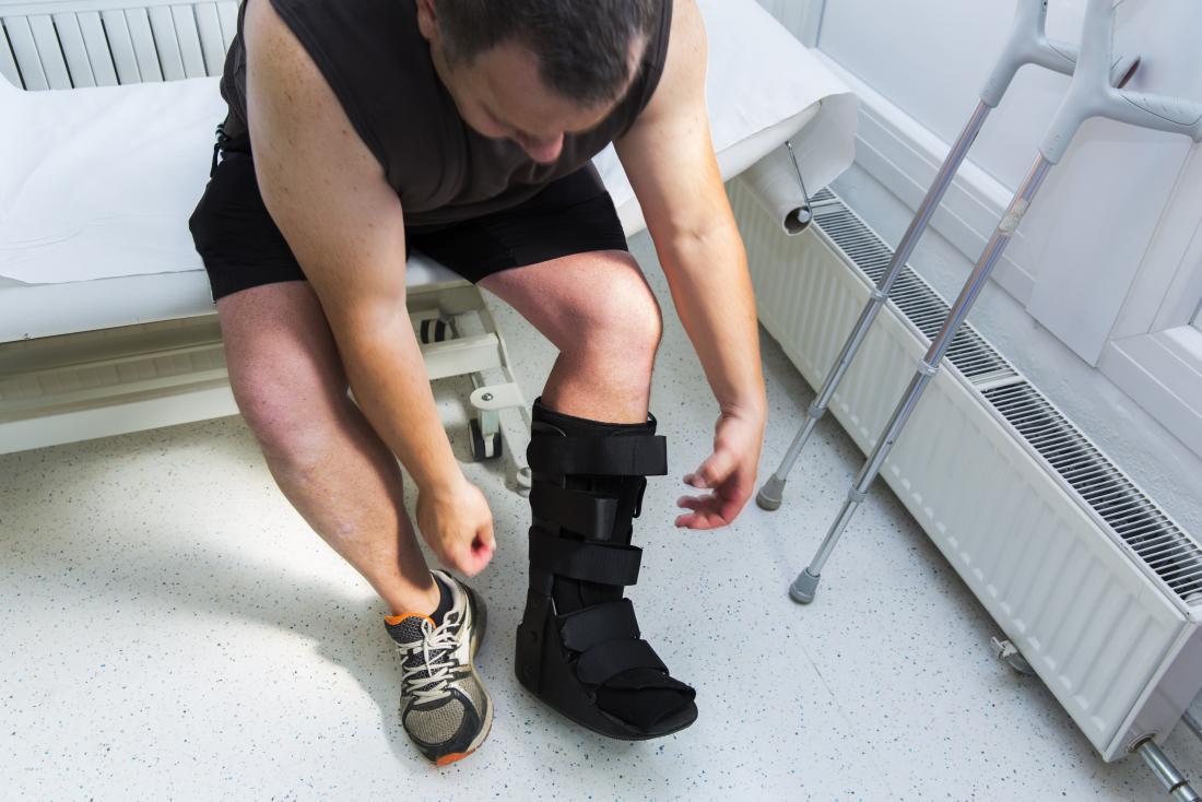 手術後に足に医療用ボットを着用し、病院のベッドの近くに松葉杖を置いた人。