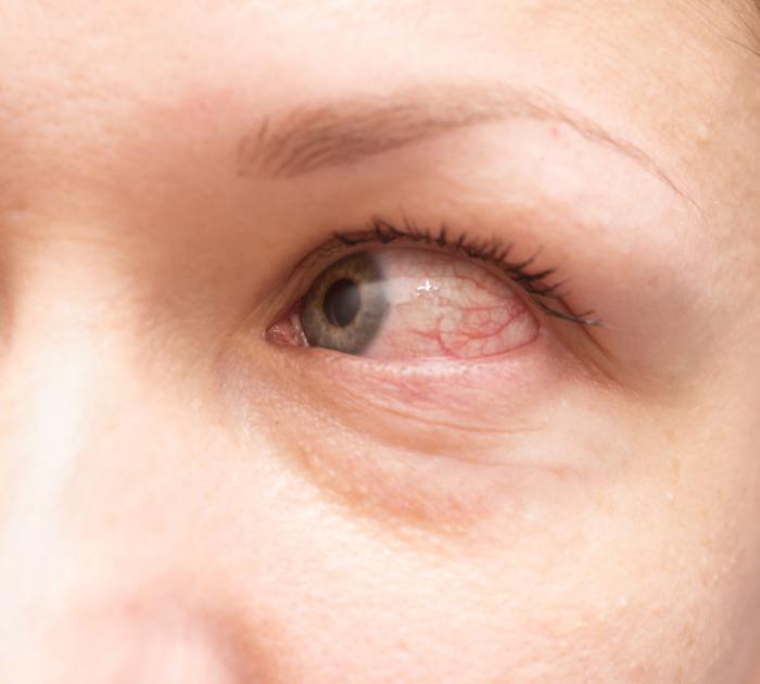 Les yeux rouges peuvent être un symptôme de la conjonctivite allergique