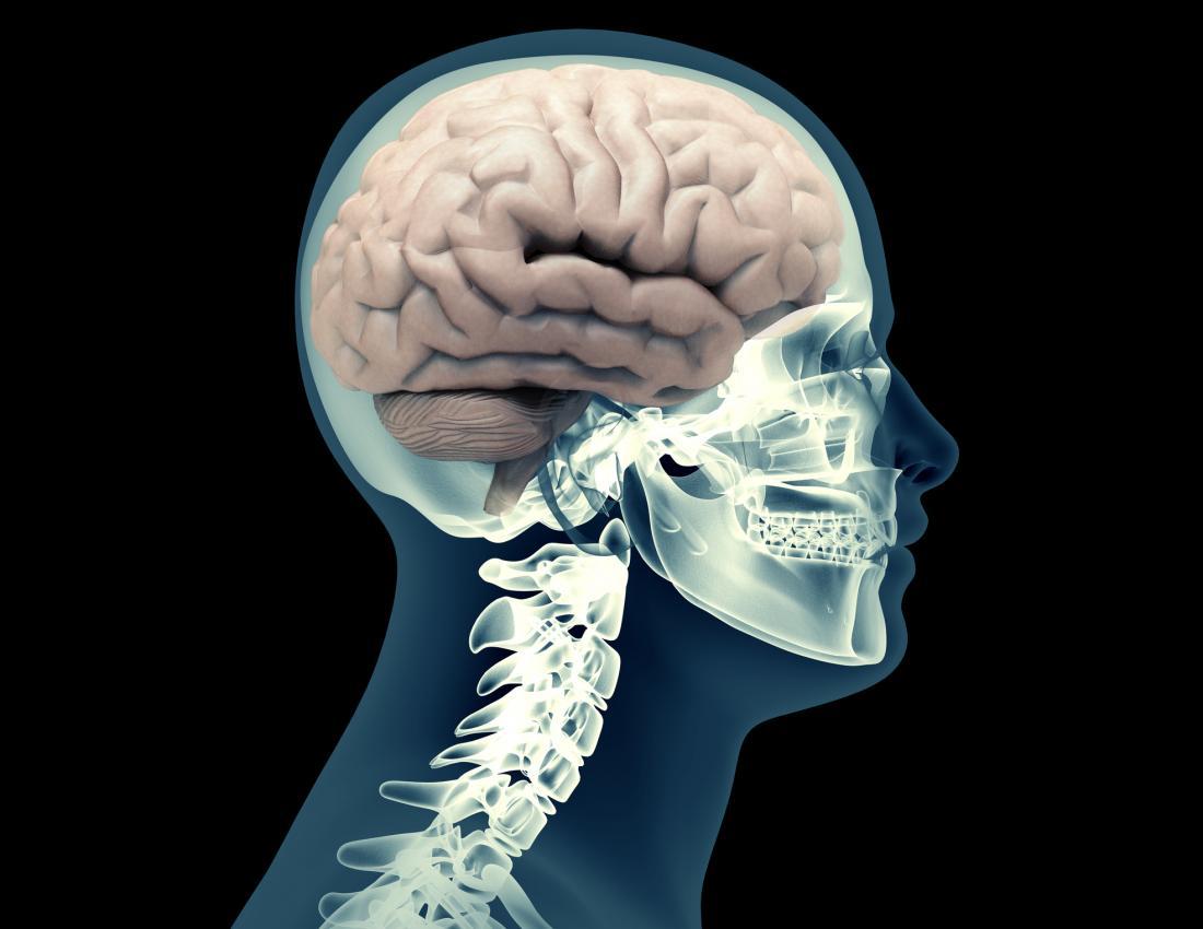 Esqueleto humano de raio-x com cérebro