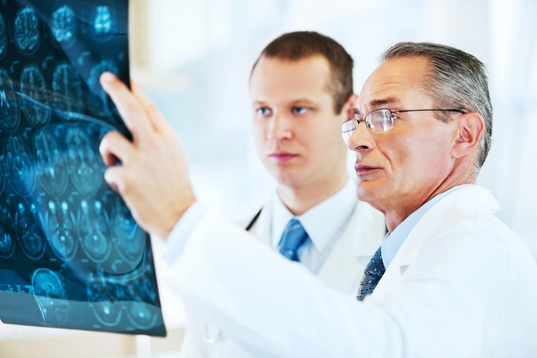dois consultores olhando para o cérebro MRI