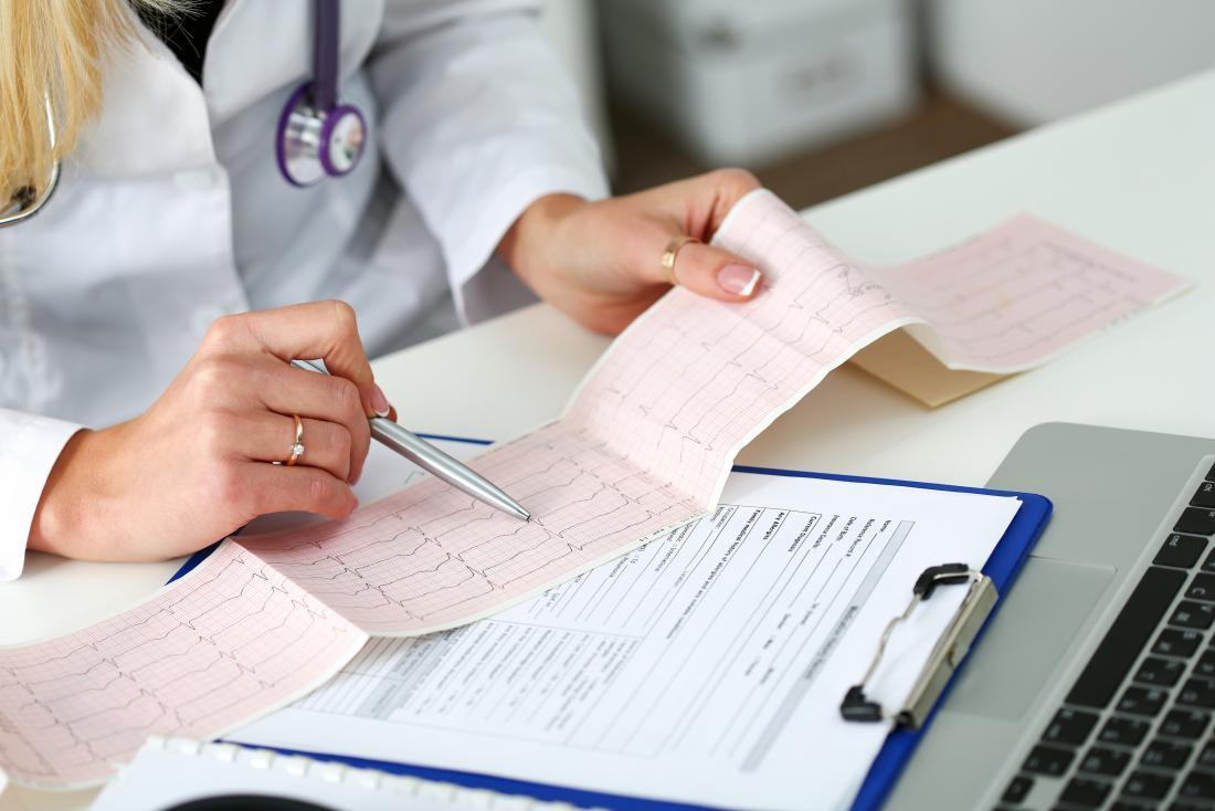 médico feminino olhando para resultados de ECG