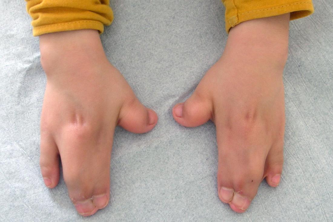 Sindrome di Apert causando sindattilia o fusione delle dita in mano.Immagine di credito: Gzzz, (2016, 14 gennaio)