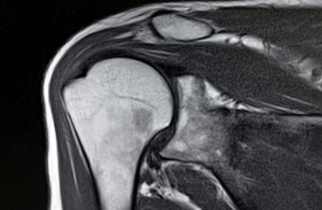Ressonância magnética da articulação do ombro e ossos.