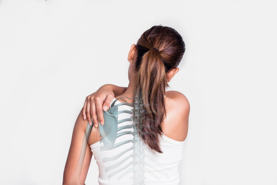 người phụ nữ với đau vai - bộ xương hiển thị