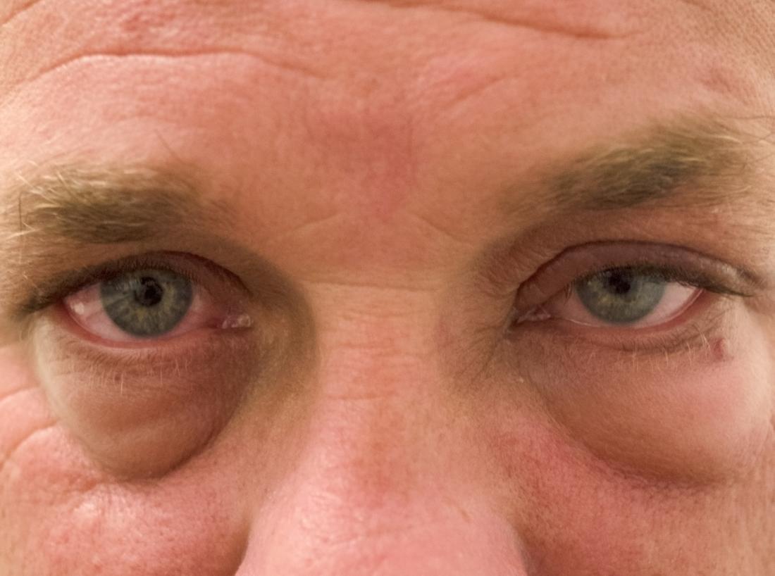 L'edema periorbitario è un tipo di edema che colpisce l'occhio.