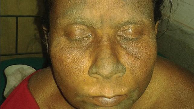 Dermatite neglect. Immagine di credito: Indian Journal of Dermatology