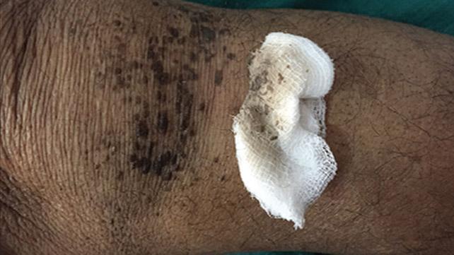 Dermatite négligée. Crédits image: Piotr Brzezinski, MD PhD