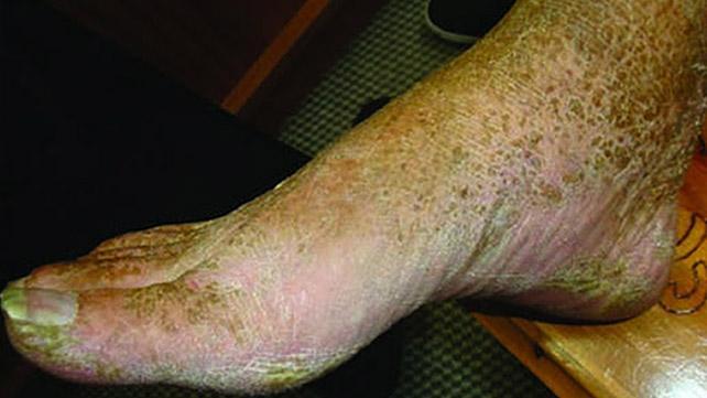 Dermatosis neglecta Crédit d'image: Dr. Ian McColl