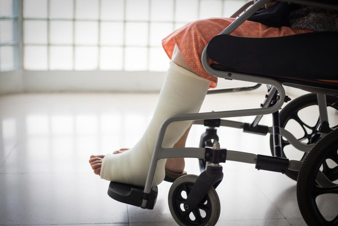 Personne dans un fauteuil roulant avec une jambe moulée.