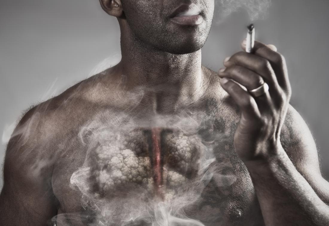 Fumar enfisema