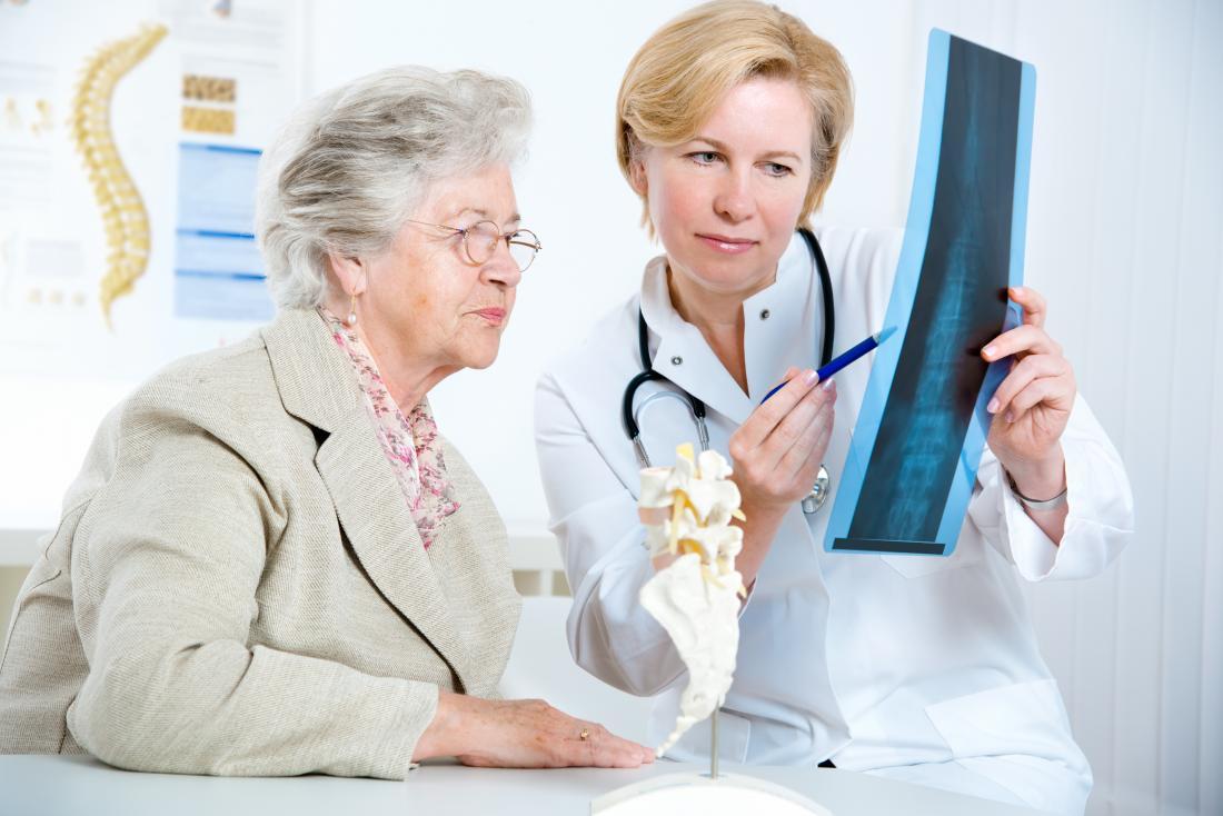 médico e paciente olhando xray da coluna vertebral