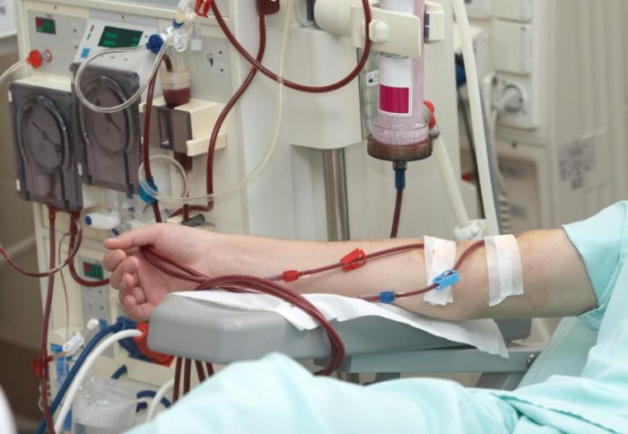 [dialyse]