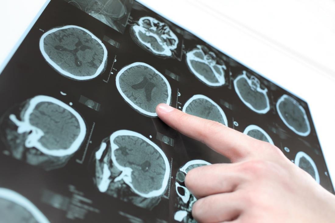 Tomografia computadorizada e ressonância magnética do cérebro.