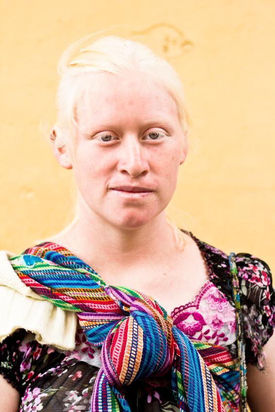 Frau mit Albinismus.