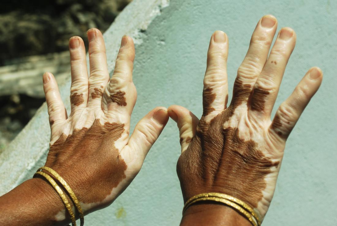 Vitiligo an den Händen.