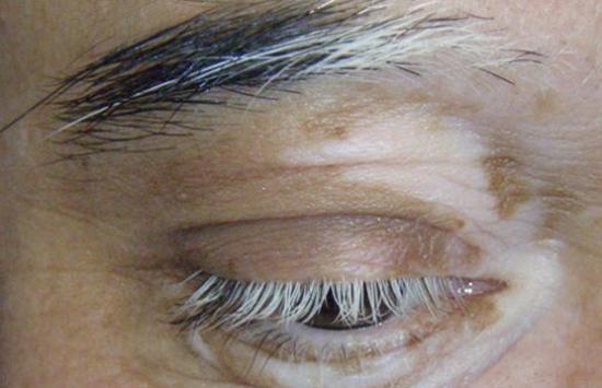 Vitiligo um das Auge, mit Poliose, die weiße Wimpern und Augenbrauen verursacht.