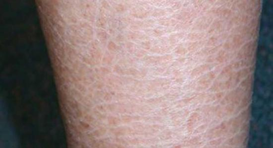 Ictiose vulgar afetando a pele.