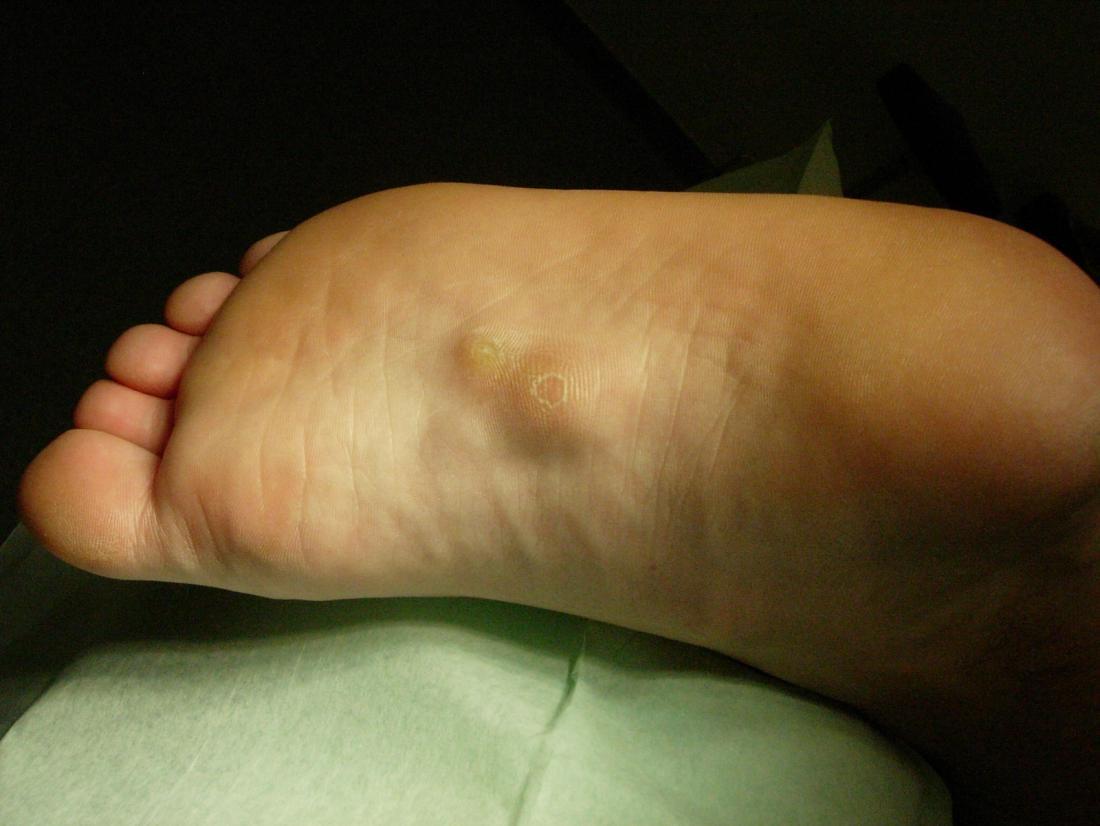 Malattia di Ledderhose