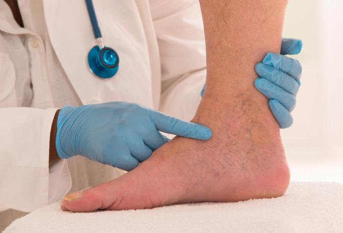 Доктор, оценяващ подут крак.